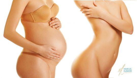 plastica-gravidez
