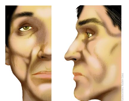 lipoatrofia-facial-grau-3