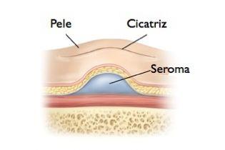 seroma-cirurgia-plastica