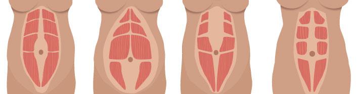 musculatura-com-diastases