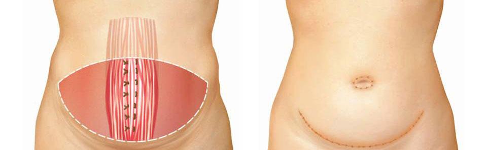 tipos-abdominoplastia