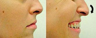 ponta-nasal