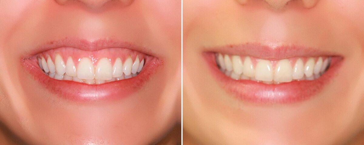 sorriso-gengival-botox-goias-goiania-large-1200x480